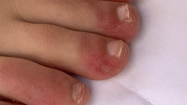 "This Is Local London: ""Covid toe"" is a rash that can look like chilblains. Credit: COVID-PIEL STUDY"