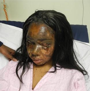 This Is Local London: Injuries sustained by Naomi Oni after she acid thrown in her face by Mary Konye who has been found guilty today at London's Snaresbrook Crown Court.