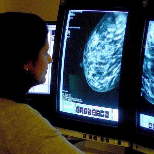 This Is Local London: Professor Mark Lawler said a high proportion of older women with a certain form of breast cancer receive less chemotherapy than their younger counterparts