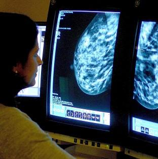 Until recently, smoking was not thought to affect breast cancer risk
