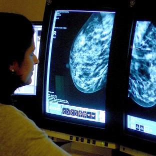 Many women having mastectomies would have been better treated with a lumpec