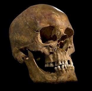 The skull of King Richard III, as distant relatives awa