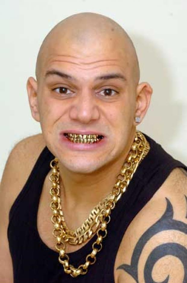 Anthony Ghosh, 30, is thinking about selling his gold teeth to make some extra money