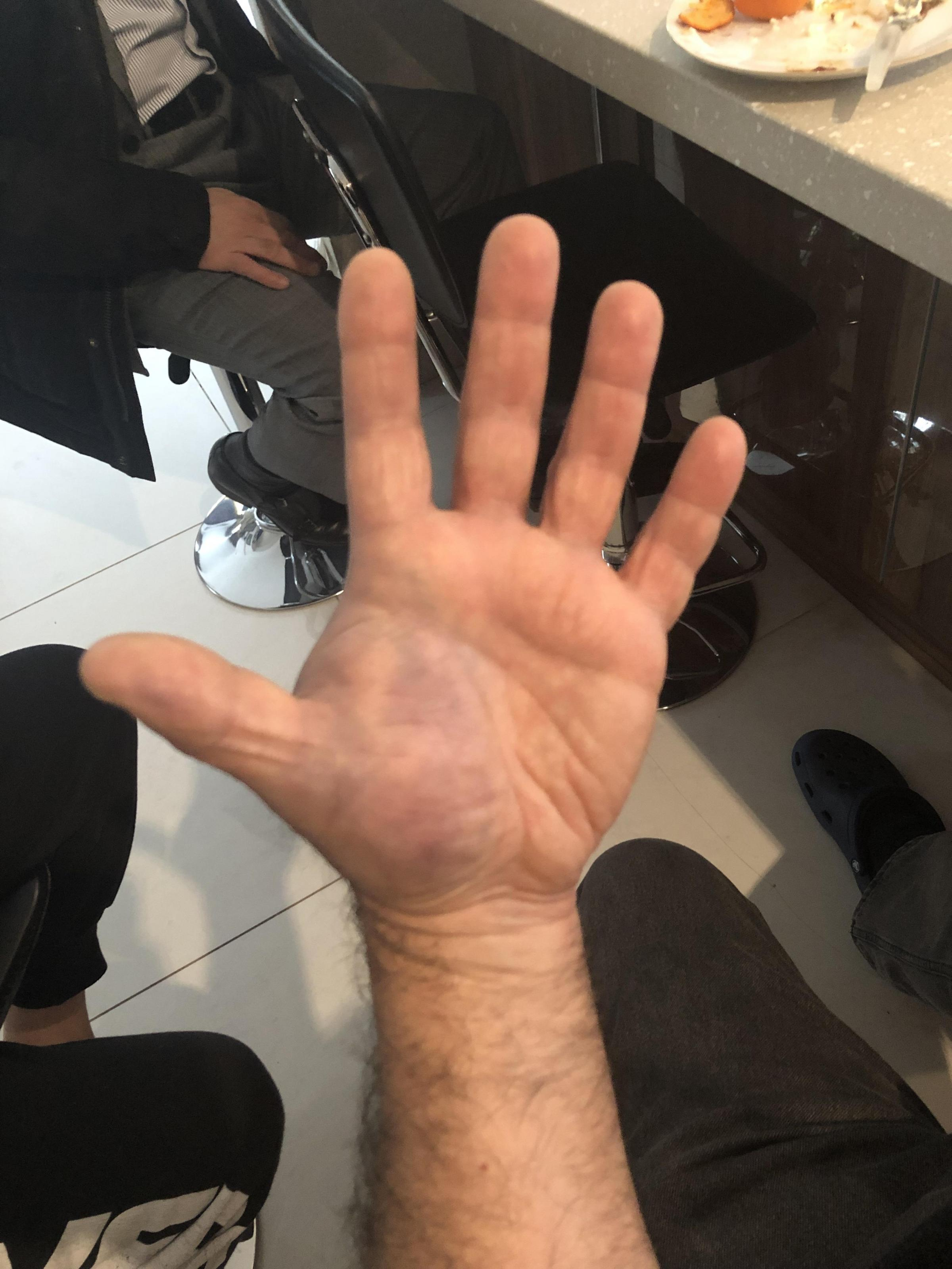 The father's hand is still bruised and swollen from the attack